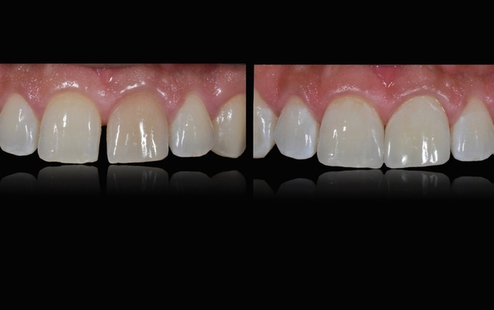 MicroVision Aesthetics All About Veneers: Full Course from Smile Design, Lab Communication, Isolation to Bonding
