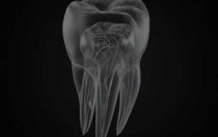 Endodontic Retreatment: When To Hold And When To Fold