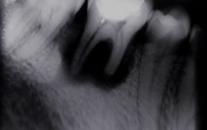 Differentiating the Different Types of Resorption
