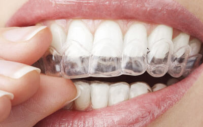 Practical Orthodontic Considerations For Oral Rehabilitation With The Invisalign Appliance