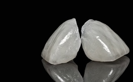 Simplified Treatment of Severe Dental Erosion with Ultra-Thin CAD/CAM Occlusal Veneers