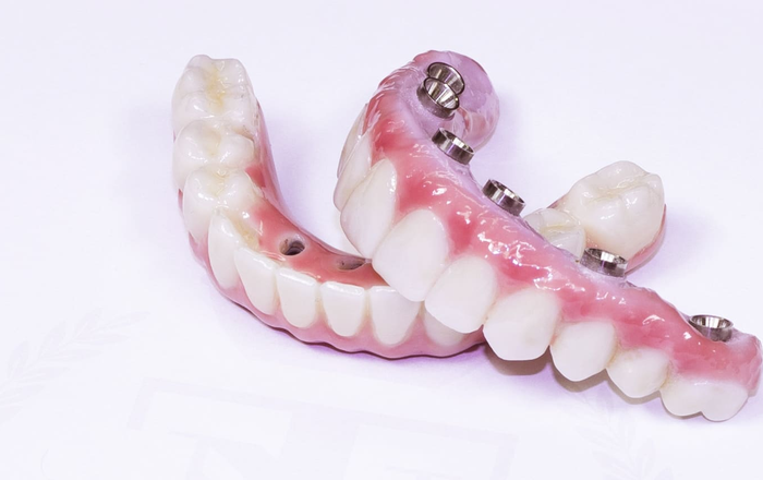 Implant Complications and Solutions in the Esthetic Zone
