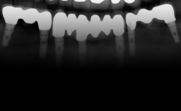 Paradigm Shift in Implant Dentistry: Importance of Soft Tissue Concept.