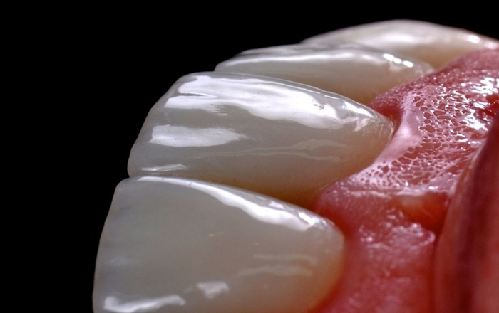 Mastering Tooth Preparation and Bonding of Ceramic Restorations: Crowns, Veneers and On-Lays