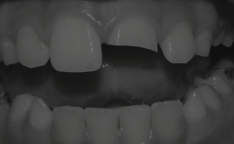 Demystifying Tooth Resorption