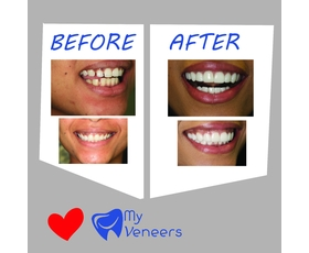 MyVeneers Cheap Porcelain Melbourne