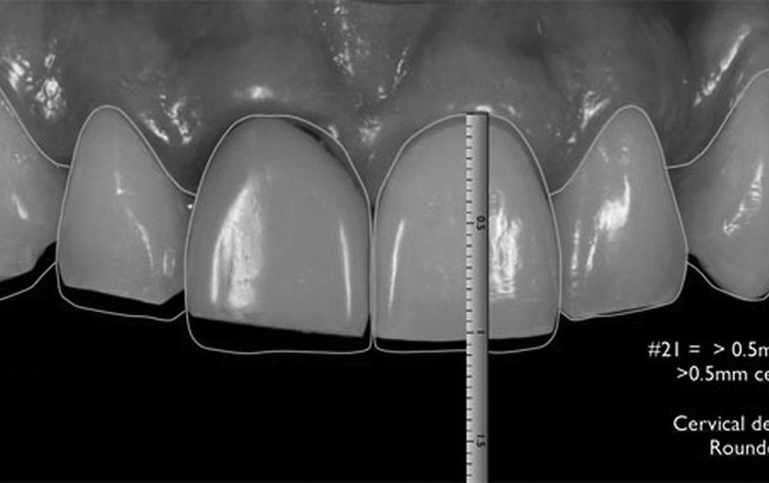 The Esthetic and Functional Rehabilitation of Compromised Dentition: Analog versus Digital Technologies