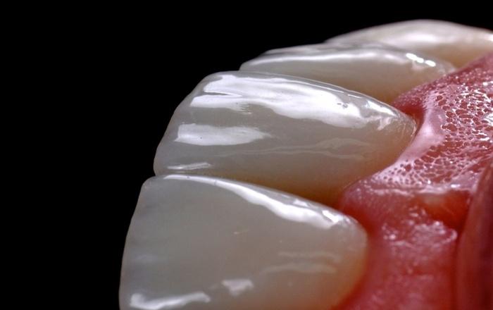 Mastering Tooth Preparation And Bonding Of Ceramic