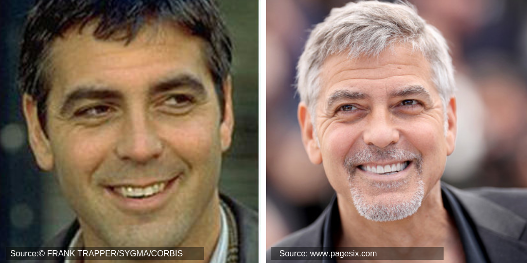 clooney-george-before&after-teeth