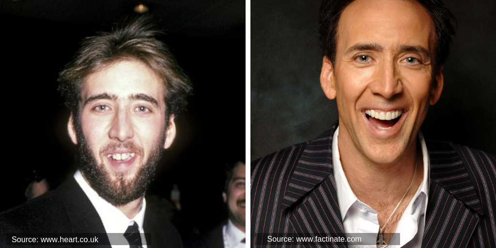 nicolas-cage-before&after-teeth
