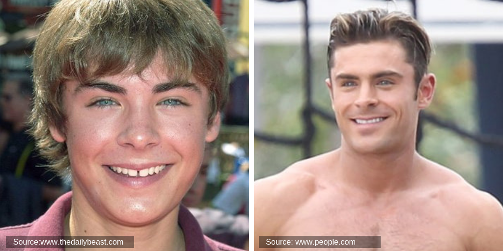 zac-efron-before&after-teeth