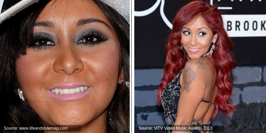 snooki-before&after-teeth