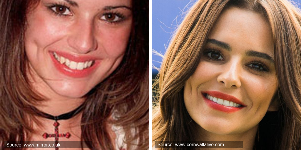 cheryl-cole-before&after-teeth