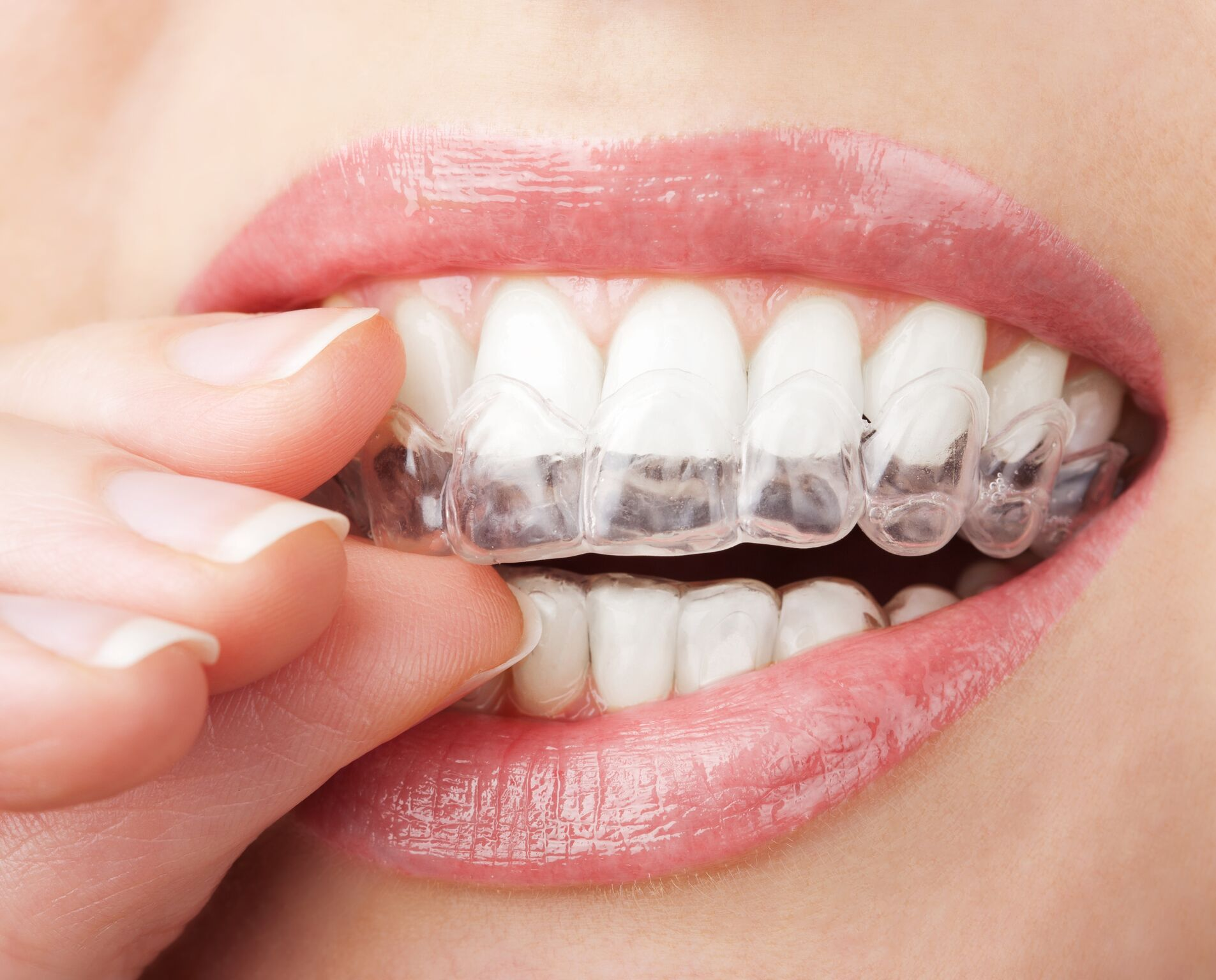 Understanding Orthodontic Retainers