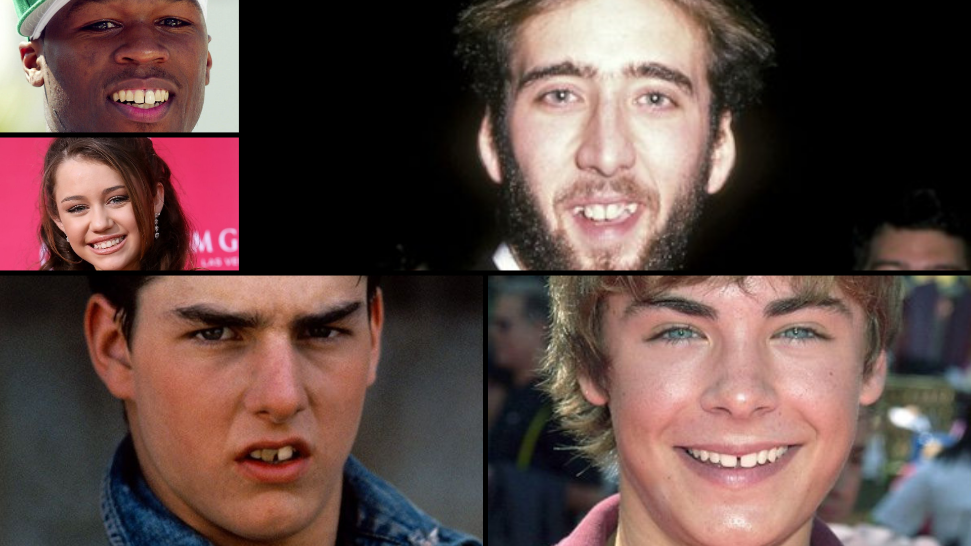 Celebrities That Reshaped Their Careers With Cosmetic Dentistry!