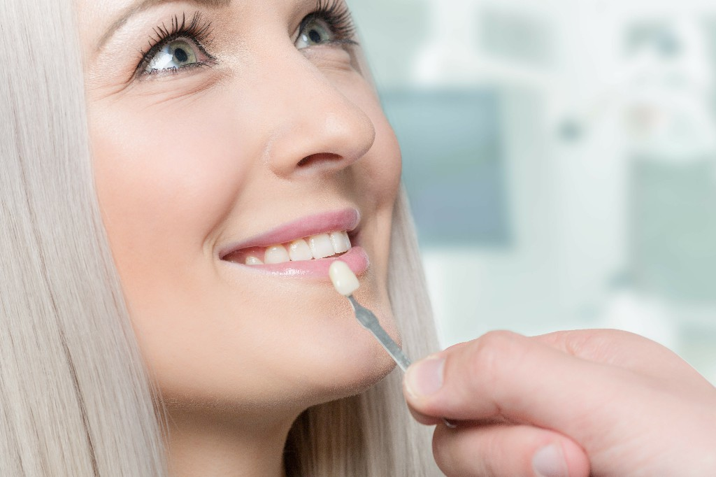 Tips On Looking After Your Dental Veneers