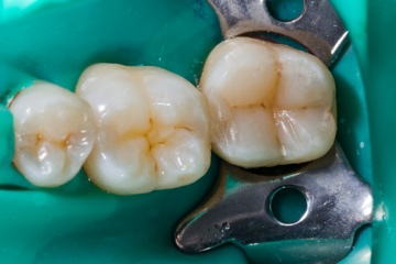 Dental Bonding-before