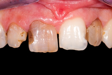 Dental Crowns-before