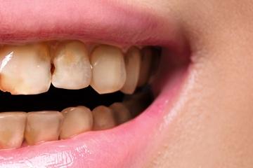 Dental Crowns-before