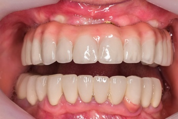 Fixed Denture-before