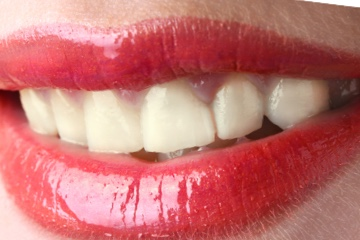 Zoom Whitening-before