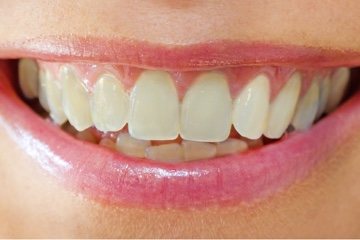 Take Home Whitening-before