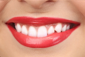 Teeth Whitening-after