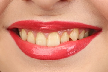 Teeth Whitening-before