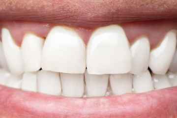 6 Veneers-before