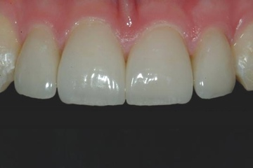4 Veneers-before