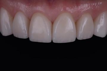 Dental Bonding-before